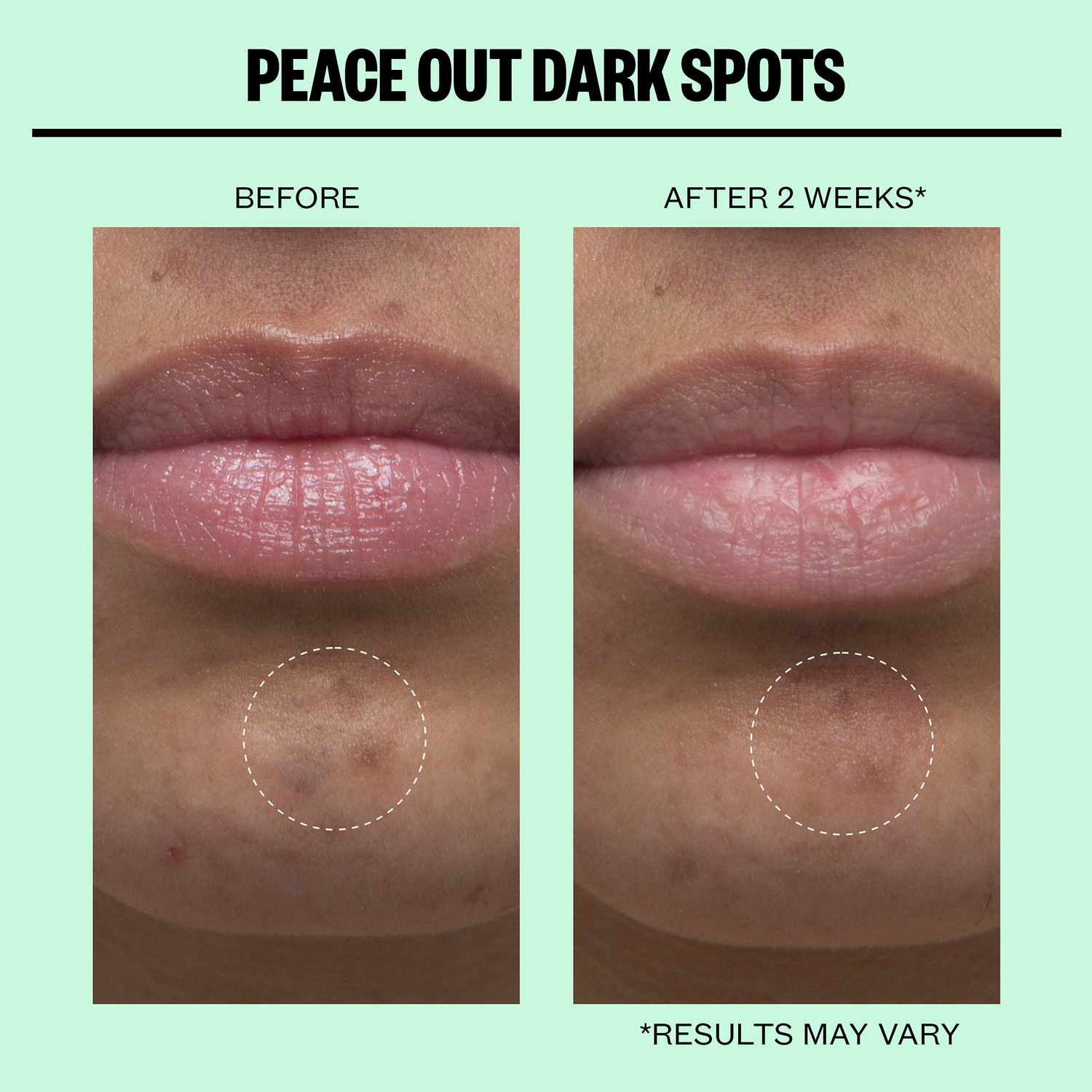 Peace Out - Dark Spots